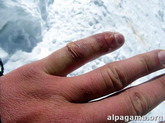 Последствия отморожения (Хан-Тенгри 3013)